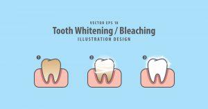 Denver Teeth Whitening
